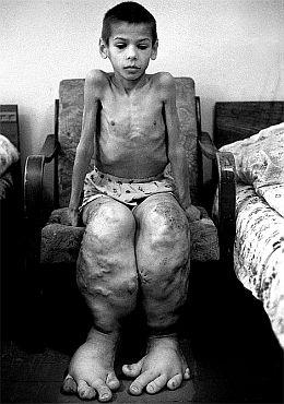 Чернобыльские мутанты - рецессия