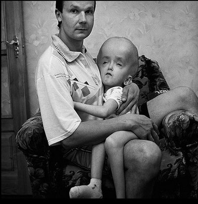 Чернобыльские мутанты - генетические повреждения